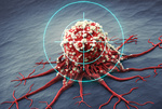 Iran ranks third in mastering technology to diagnose cancer through isotopes