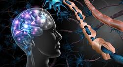 Tehran to host international congress on multiple sclerosis